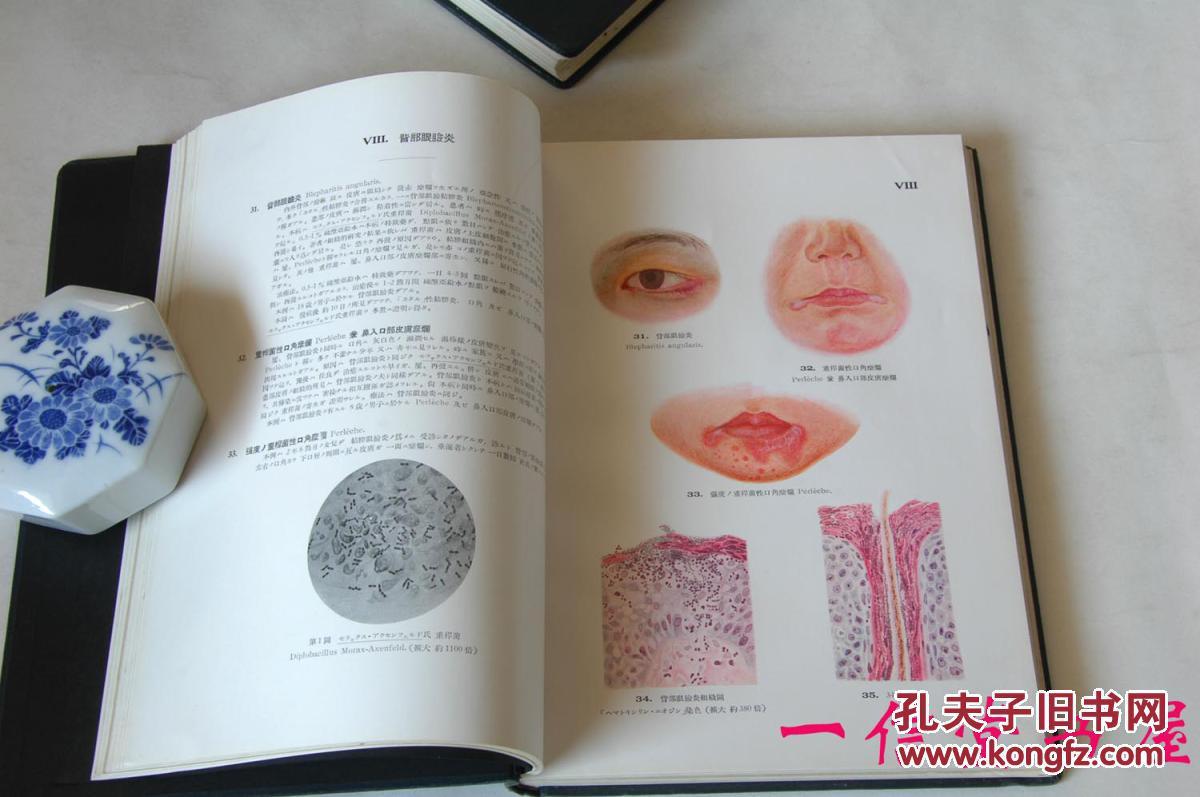 《眼科图谱》2册全 日文 东京帝国大学教授医