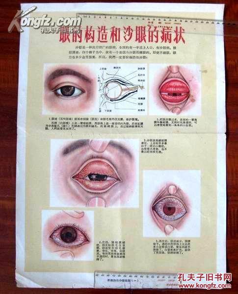 50年代卫生 宣传画: 眼的构造和沙眼的病状 1图片