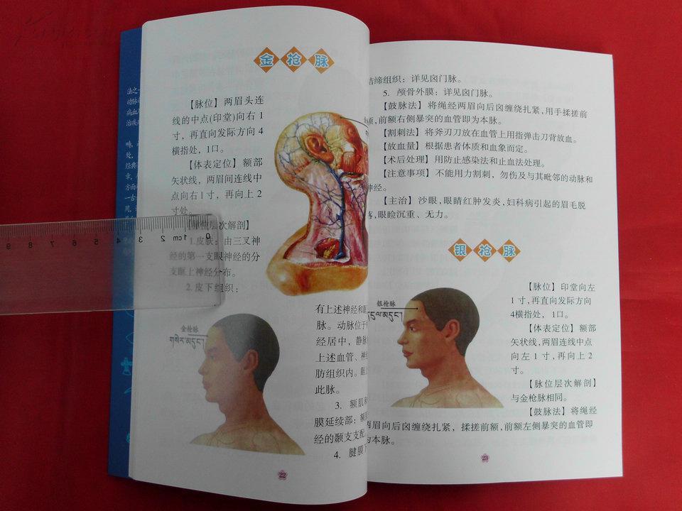 几个2014年_《四部医典》之藏医放血疗法图解(汉文,2014年1版1印
