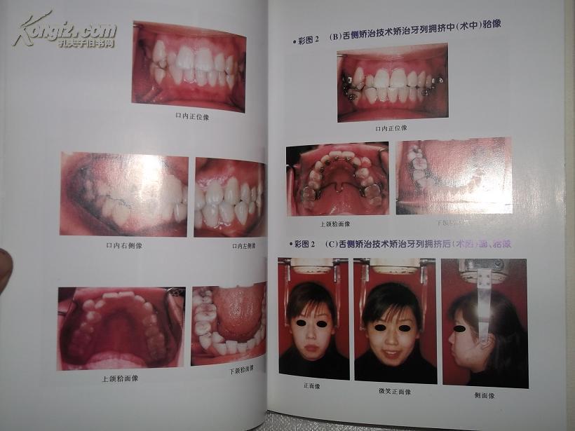 牙颌面畸形诊断与治疗(精装本)林珠图片