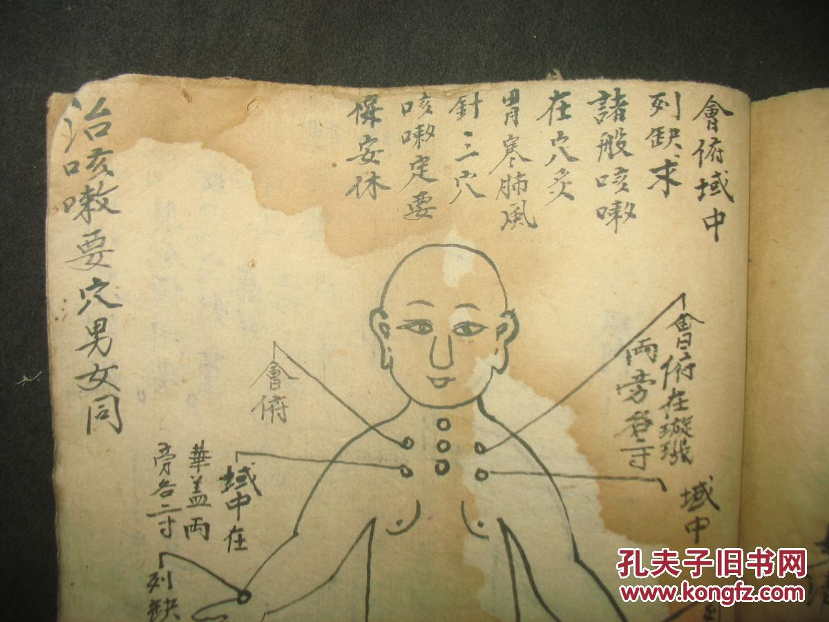 针灸抄本秘本《杨氏家传针灸证治图诀》图片