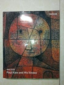 Hans Suter Paul Klee and his illness(汉斯-保罗克利和他的病)