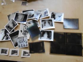 底片照片【60年代,医院放射科,21张】