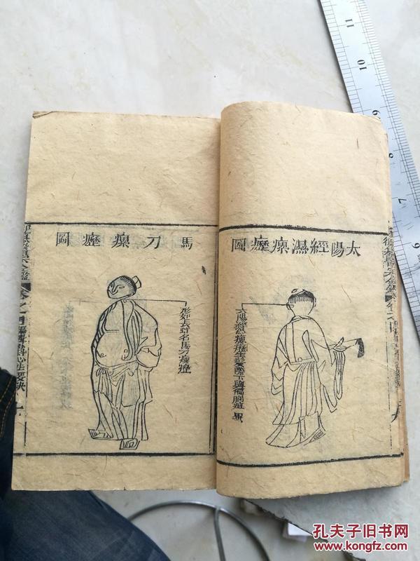 医宗金鑑卷四,外科心法