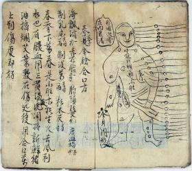 中医古籍手抄本 吴秀文用铁打良方 18