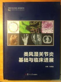 类风湿关节炎:基础与临床进展