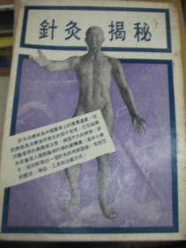 老医书:针灸揭秘  72年版.孤本包快递