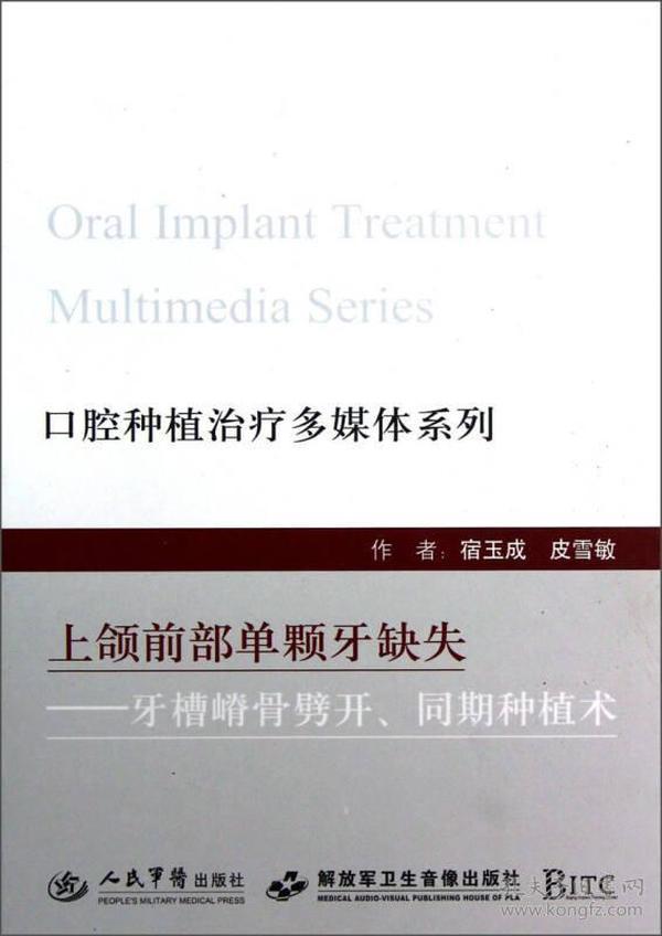3上颌前部单颗牙缺失——牙槽嵴骨劈开、同期种植术