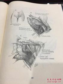 atlas of operative technic anus rectum and colon肛门直肠结肠手术技术图解
