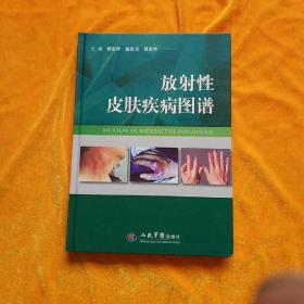 放射性皮肤疾病图谱