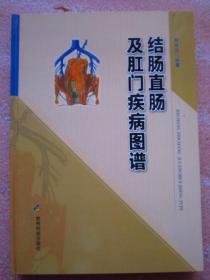 《结肠直肠及肛门疾病图谱》 全新  精装  铜版纸彩印  图文并茂