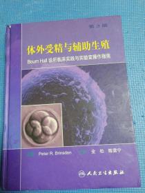 体外受精与辅助生殖