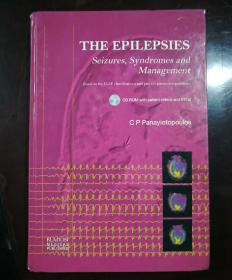 THE EPILEPSIES   Seizures,Syndromes and Management