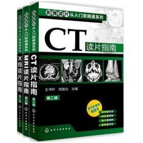 影像读片从入门到精通系列(第二版) --CT读片指南+MRI读片指南+X线读片指南(共3册)