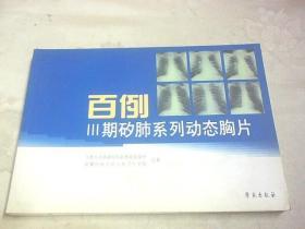 百例Ⅲ:期矽肺系列动态胸片