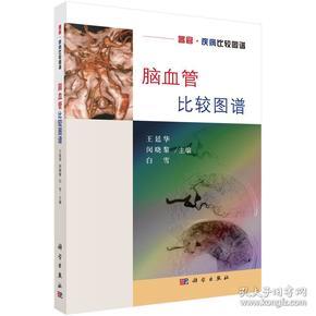 【正版】脑血管比较图谱 王廷华,闵晓黎,白雪