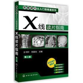 影像读片从入门到精通系列-X线读片指南(第二版)