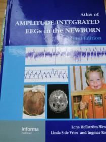 atlas of amplitude integrated eegs in the newborn