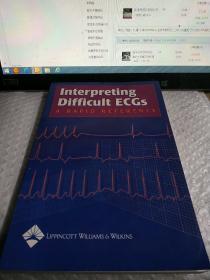 Interpreting Difficult ECGs