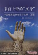 """来自上帝的""""文身"""":中国银屑病患者生存实录.上卷  看好描述"""