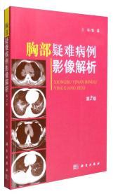 胸部疑难病例影像解析(第二版)