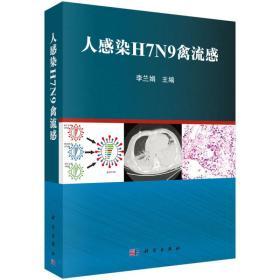 人感染H7N9禽流感