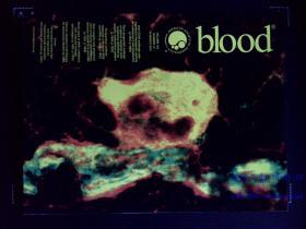 blood JOURNAL OF THE AMERICAN SOCIETY OF HEMATOLOGY 2015/03/19 P1847-2010 英文原版医学权威美国血液学学会杂志