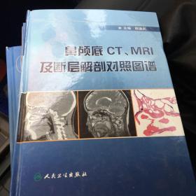 鼻颅底CT、MRI及断层解剖对照图谱