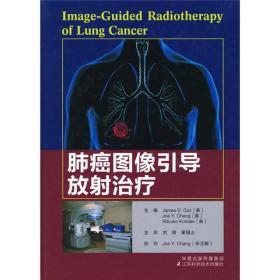肺癌图像引导放射治疗