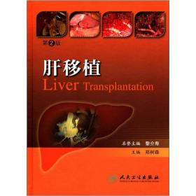 肝移植(第2版)