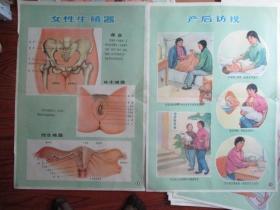 早期宣传画:新法接生挂图(供赤脚生用)【女性生殖器】【产后访视】2张合售