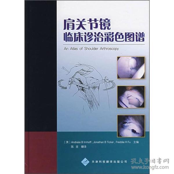 肩关节镜临床诊治彩色图谱