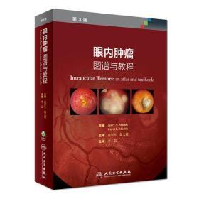 眼内肿瘤:图谱与教程(翻译版)
