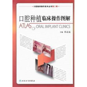 口腔种植临床操作图解(口腔临床操作技术丛书)