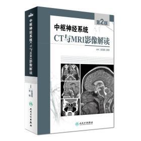 中枢神经系统CT和MRI影像解读 第2版