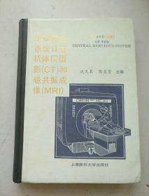 中枢神经系统计算机体层摄影(CT)和磁共振成像(MRI)