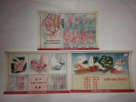 建国初期五十年代山西省人民政府卫生厅印制的卫生防疫宣传画3张(关于胎儿的)