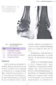 足踝关节镜手术技术