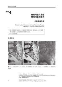 9787538197501-hs-脊柱治疗后的影像