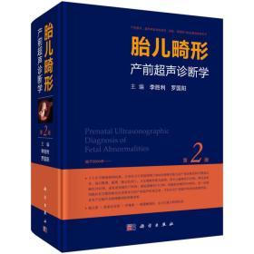 限价80折 胎儿畸形产前超声诊断学 第2版