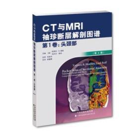 CT与MRI袖珍断层解剖图谱 第1卷-头颈部