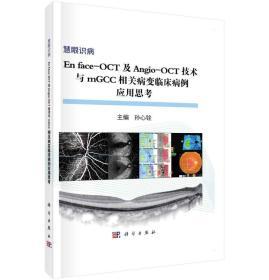 En face-OCT及Angio-OCT技术与mGCC相关病变临床病例应用思考