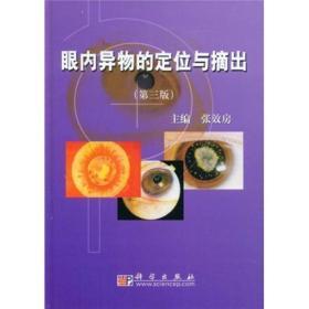 眼内异物的定位与摘出(第3版)
