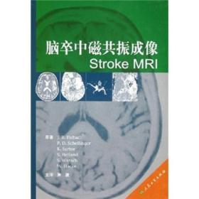 脑卒中磁共振成像Stroke MRI