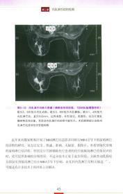 乳腺癌内乳淋巴结研究-(本书配光盘)