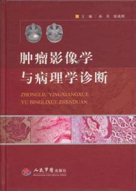 肿瘤影像学与病理学诊断