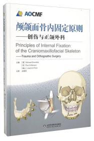 颅颌面骨内固定原则 创伤与正颌外科