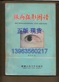 眼病摄影图谱