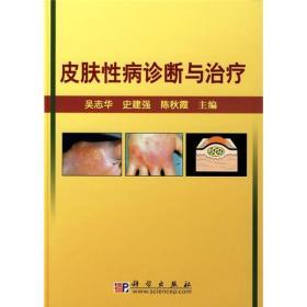 皮肤性病诊断与治疗