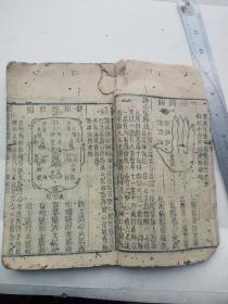 东医宝鉴卷十一,治儿科病